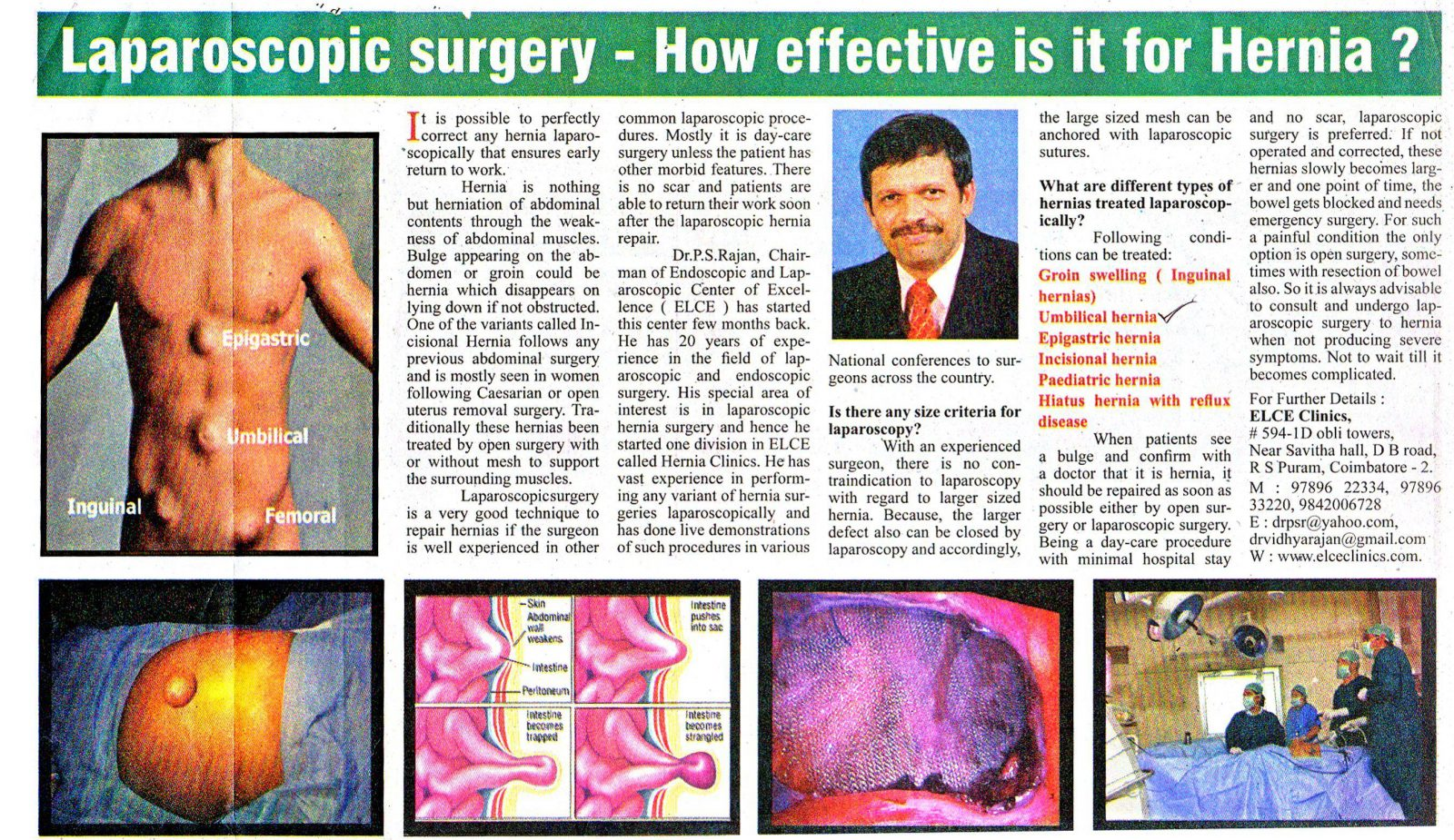 weight loss surgery cost in india