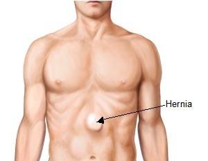 hernia body