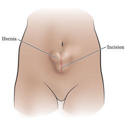 incisional hernia surgery