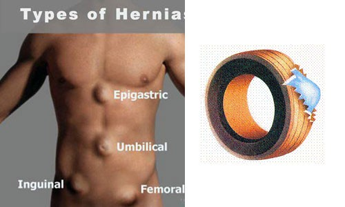 hernia img