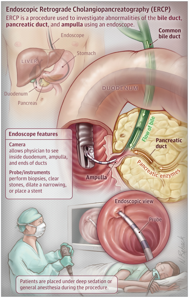 Endoscopic Retrograde Cholangio-Pancreatography