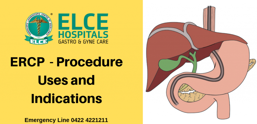 ERCP  – Procedure Uses and Indications: