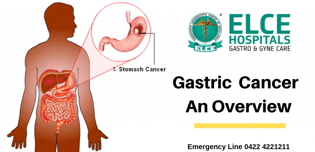 Gastric  Cancer –  An Overview