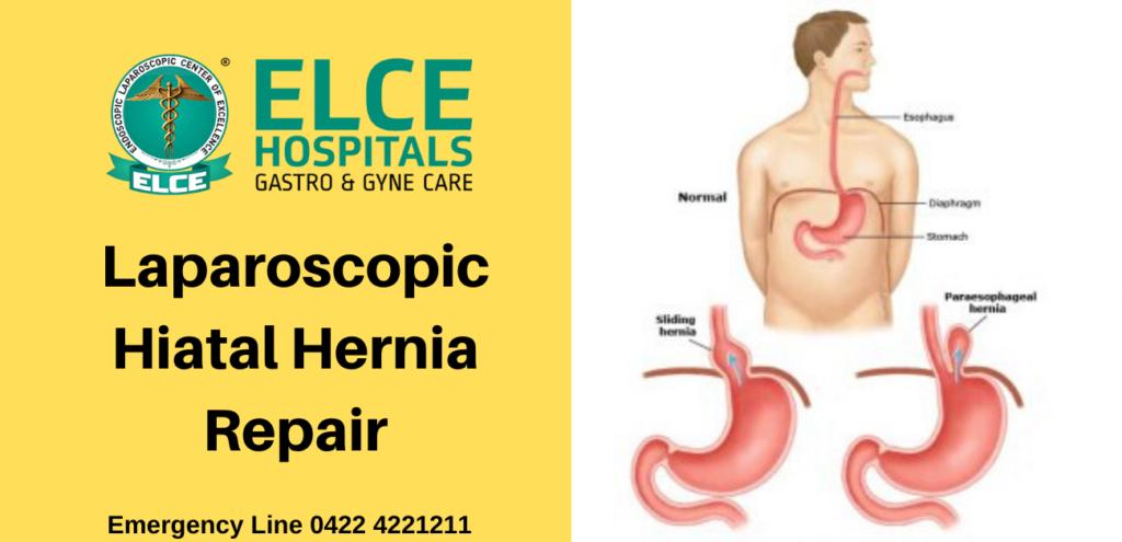 Laparoscopic Hiatal Hernia Repair