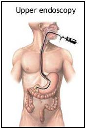 best upper endoscopy in Coimbatore