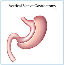 Gastric bypass surgery hospital